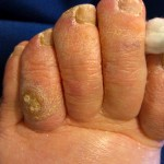 Toe Corns, corn, toe callus, thick skin on toe, soft corn, hard corn, heloma molle, heloma dura, toe pain, sore toe, hammer toe, hammertoe, crest pad, toe separator,