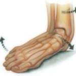 Structural Foot Problems, flat foot, pes planus, falling arch, arch, foot pain, heel spur, back pain