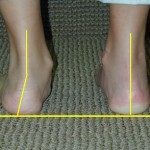flat foot, pes planus, falling arch, arch, foot pain, heel spur, back pain