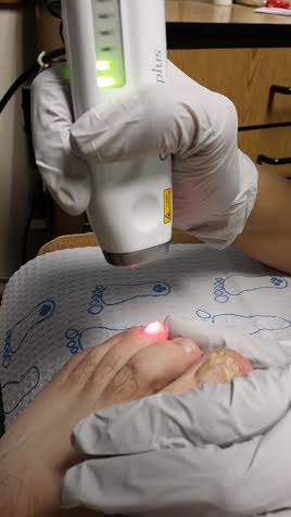 Laser Nail Fungus Treatments, Nail Fungus Treatment, laser nail, laser fungus westminster,nail infection, nail disease, nail, toenail, Laser toenail, laser fingernail, fingernail infection, laser nail fungus westminster