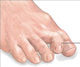callus on big toe treatment