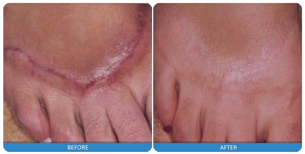 Laser Scar Reduction, Laser Skin rejuvenation, Scar Reduction, scar treatment, make my scar go away, how can i reduce the appearance of my scar, Laser Scar treatement, scar treatment, treat scars, hypertrophic scar, keloid scar, treatments for keloid, treatments for hypertrophic scar,