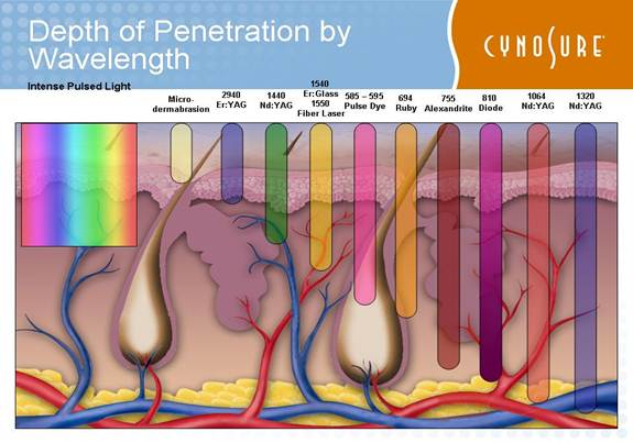 Skin penetration depth of 3khz