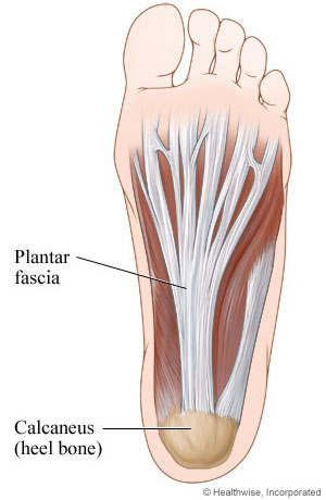 how to cure plantar fasciitis pain