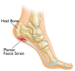 Heel Pain, foot pain, painful heel, painful foot, painful feet in the morning, plantar fascitis, heel pain treatment, plantar fascitis treatment, orthotics, insoles, plantar fascitis, westminster podiatrist, broomfield podiatrist, denver podiatrist