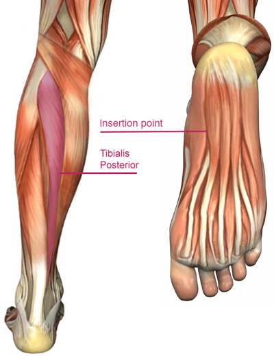 Structural Foot Problems, Running Lower Legs