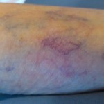 spider Vein Treatment, spider vein, vericose vein, veins in legs, treatment for spider veins, spider vein treatment denver, spider vein treatment colorado,