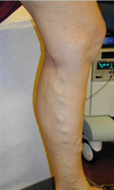 laser spider Vein Treatment, spider vein, vericose vein, veins in legs, treatment for spider veins, spider vein treatment denver, spider vein treatment colorado,