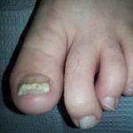 Best Treatment For Laser Toenail Fungus Denver Colorado