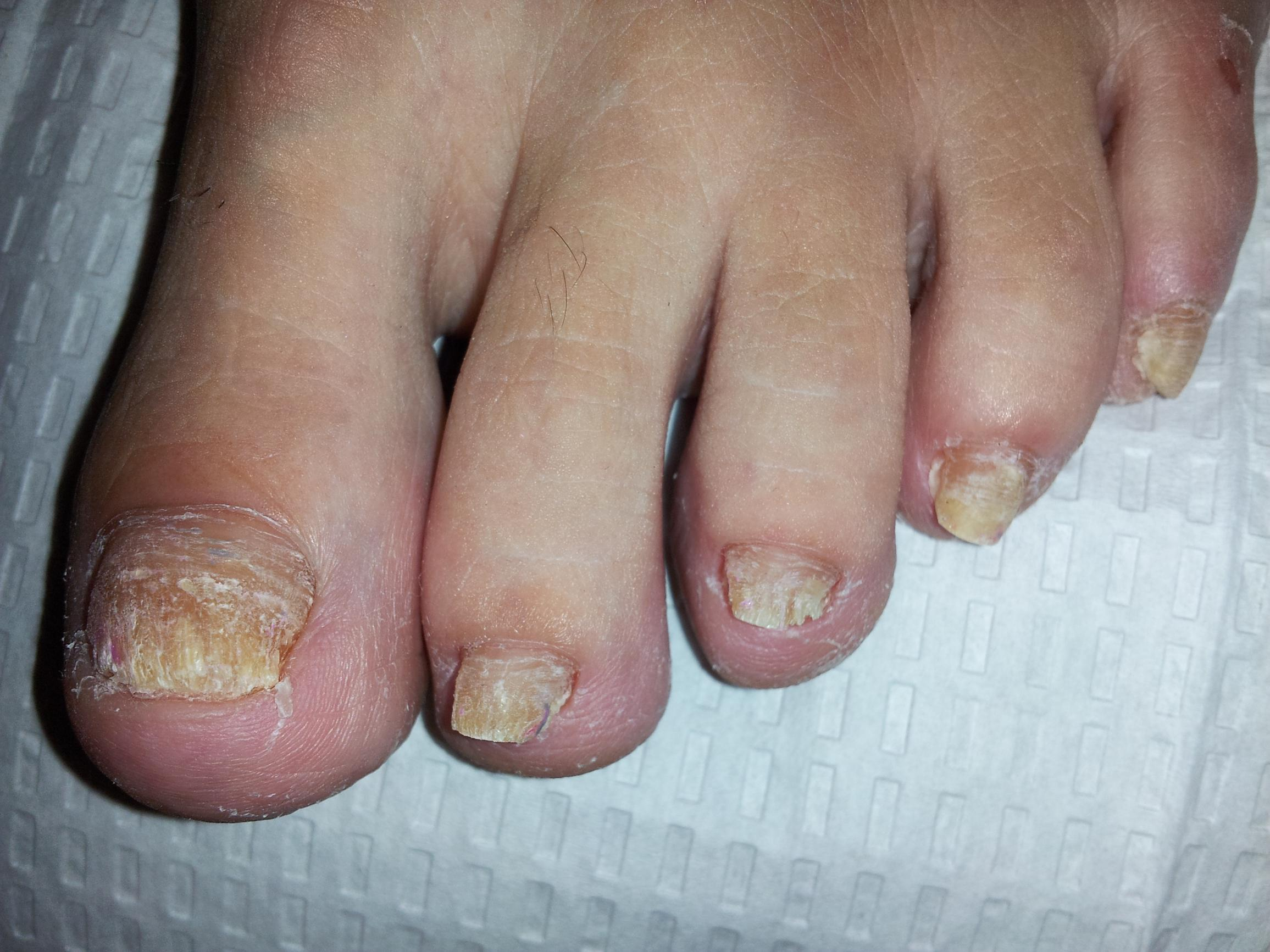 Laser Nail Fungus Treatment | Nail Fungus Treatment | Nail