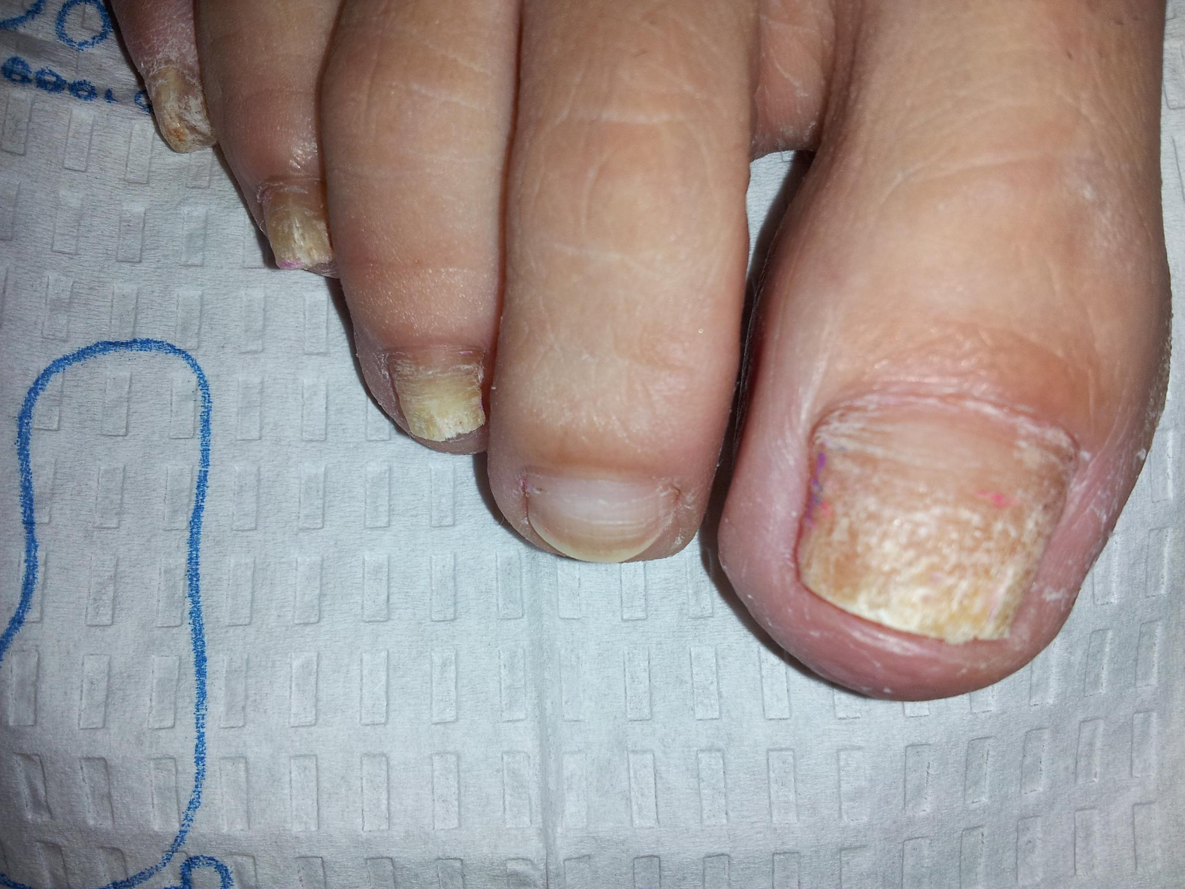 Laser Nail Fungus Removal, Laser Nail Fungus Treatments, Nail Fungus Treatment, laser nail, laser fungus westminster, nail infection, nail disease, Medication for nail fungus, Laser toenail, laser fingernail, fingernail infection, laser nail fungus westminster
