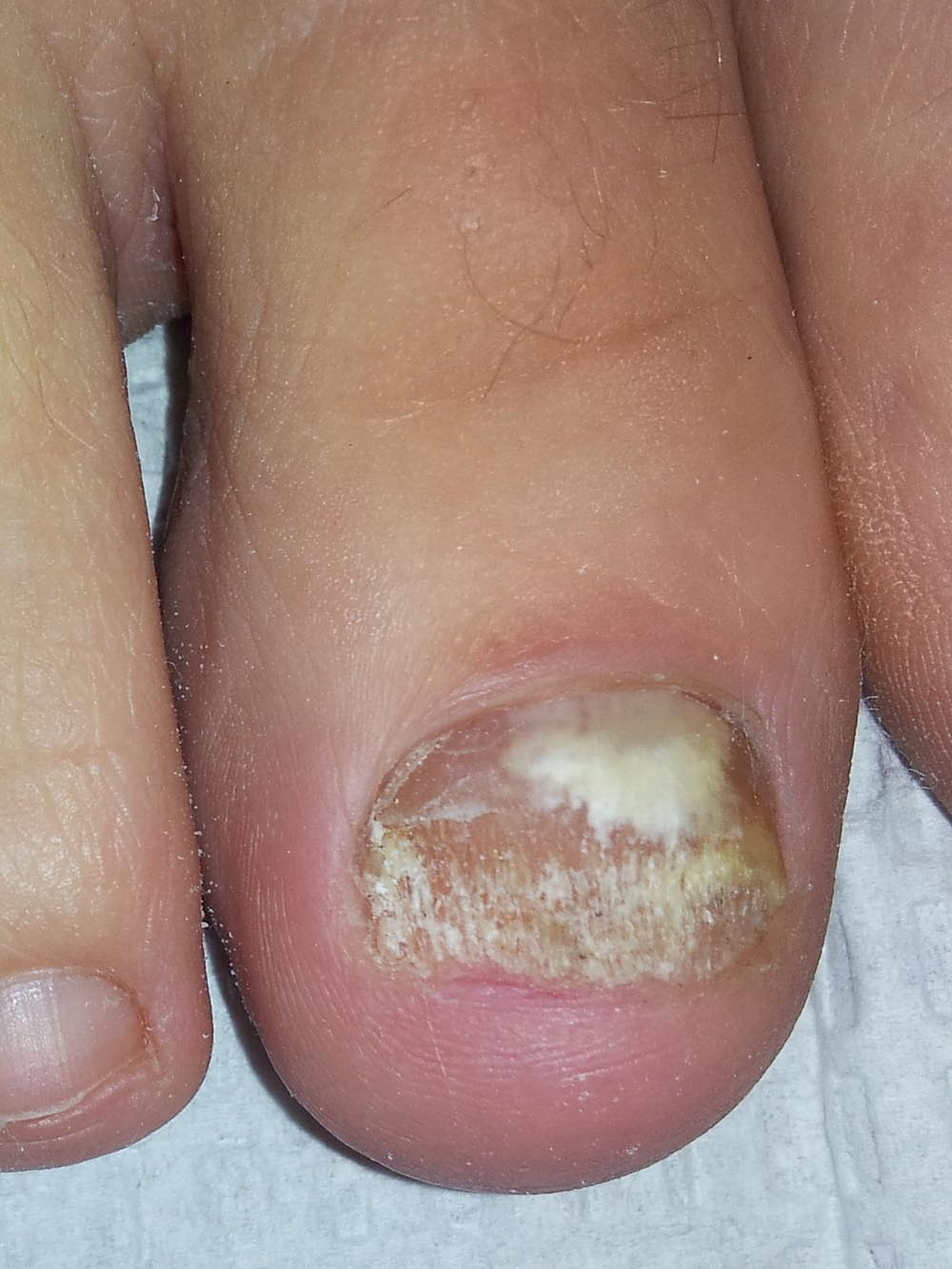 Most Effective Laser Nail Fungus Treatment | Nail Fungus Cure Denver