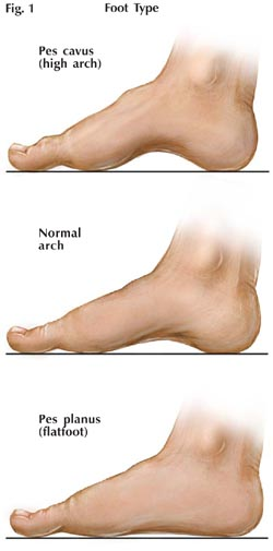 Foot Types, fitting shoes, fitting shoes high arched feet, edema, high arched feet, orthotics
