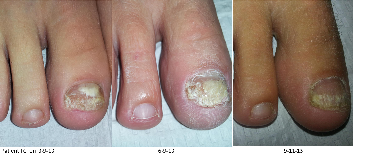 Nail Fungus Treatment | Nail Infection Treatment | Nail