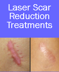 laser scar reduction, scar reduction, laser scar reduction denver, laser scar reduction westminster, laser scar removal