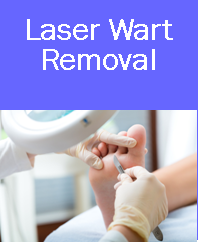 Laser Wart Removal Treatments | Wart Removal | Treat Wart