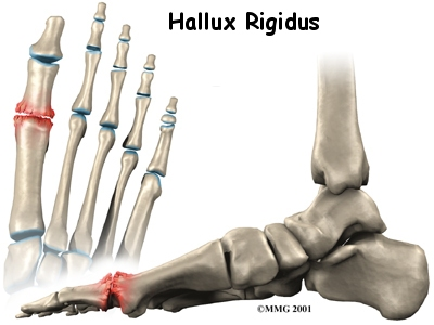 Best options for great toe joint arthritis