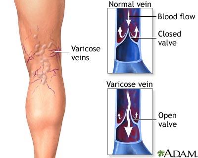 scapa de laser varicos varicose varicoză și displazie a țesutului conjunctiv