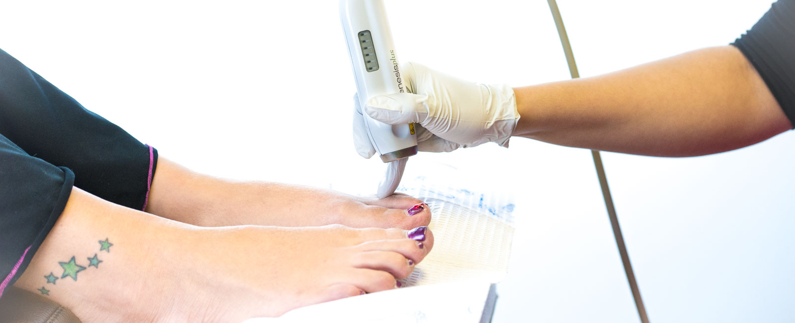 Laser Procedures Laser Nail Fungus Procedure Laser Denver